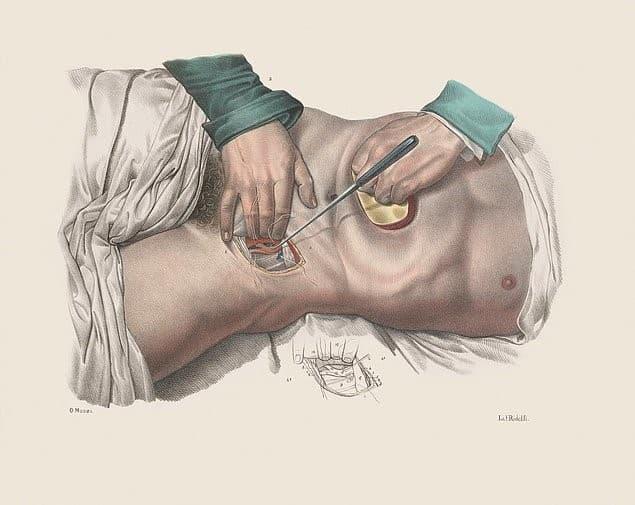 prensado de una arteria