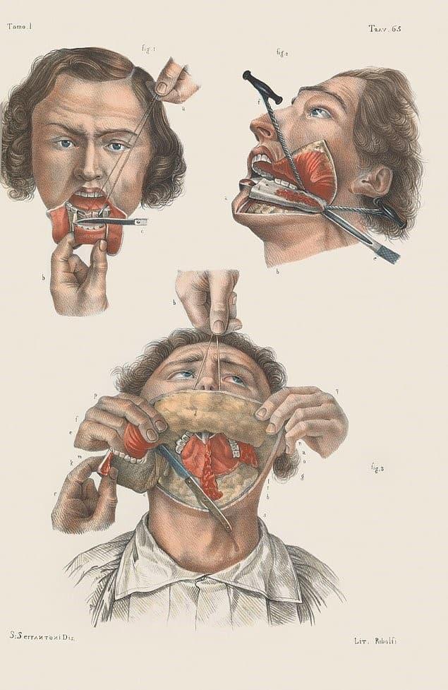 remocion del maxilar inferior